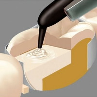 Filtek Bulk Fill A3- Жидкотекучий композитный материал (2 шприц х 2 г + 20 наконечников), 0001025
